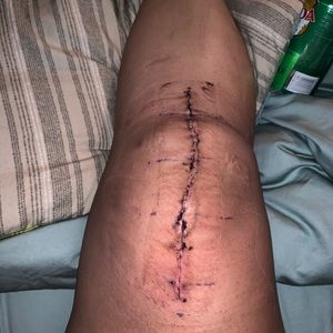 HAD A TOTAL KNEE REPLACEMENT.. WILL SELL ALL HEELS
